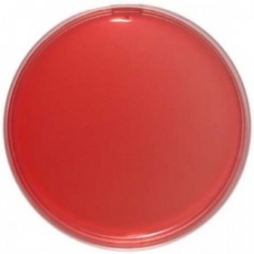 Sheep Blood Agar (10% Sheep Blood) 90 Mm